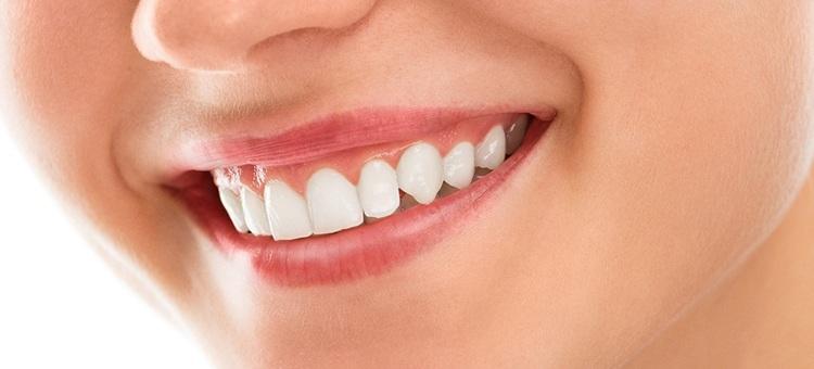 healthy-gums1